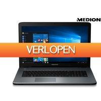 iBOOD Electronics: Medion Akoya 17.3