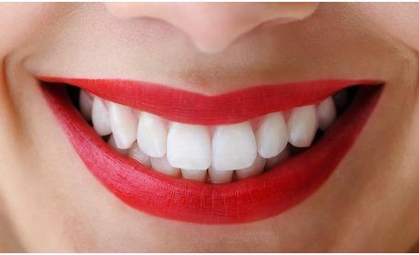 Groupon: Behandeling tanden bleken