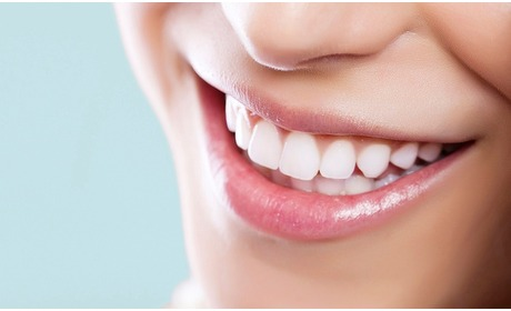 Groupon: Intensief tandenbleken