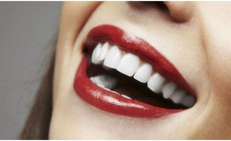 Groupon: Breda: tandenbleken geen peroxide