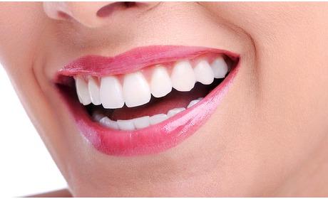 Social Deal: Tandenbleekbehandeling bij Happy Skin