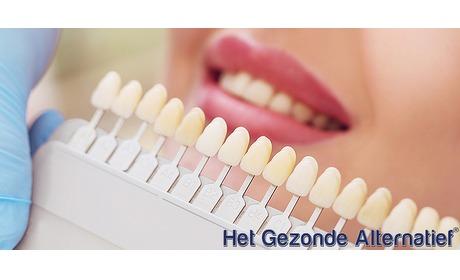 Wowdeal: Tandenbleken in Roermond
