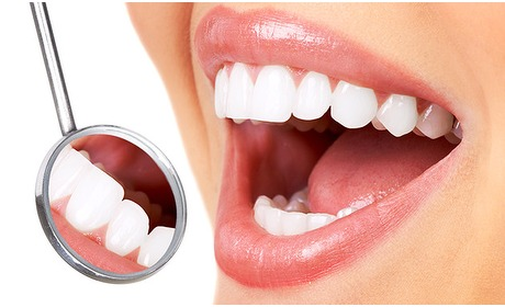 Social Deal: Tandenbleekbehandeling bij Savannah
