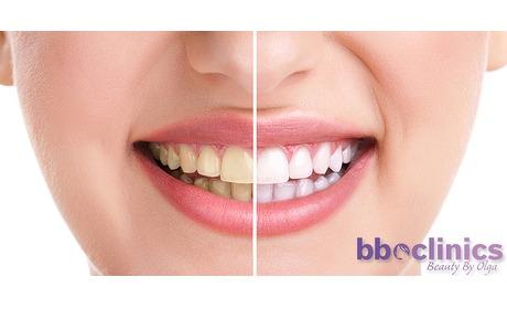 Wowdeal: Tandenbleken bij Bbo Clinics