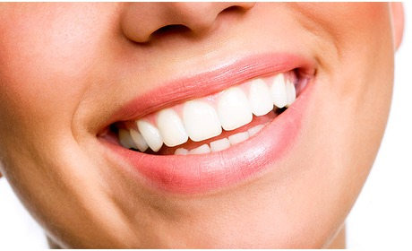 Social Deal: Tandenbleekbehandeling bij Ultra White