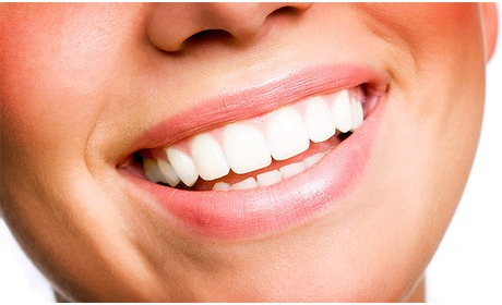 Social Deal: Tandenbleekbehandeling