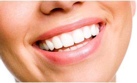 Social Deal: Tanden bleken (30 of 60 minuten)