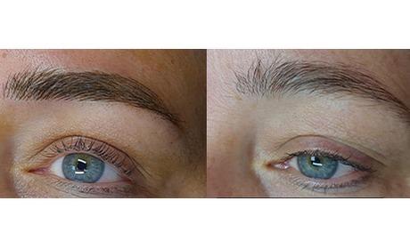 Wowdeal: Hairstrokes: (permanente) wenkbrauw voor altijd bij A-Clinic