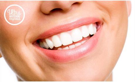 Social Deal: Tandenbleekbehandeling naar keuze