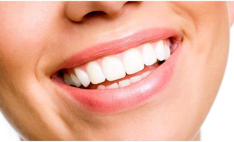 Social Deal: Tandenbleekbehandeling bij Beauty by Stouthamer