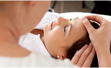 Social Deal: Acupunctuurbehandeling (60 min)